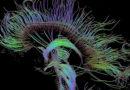 Charting New Territory in the Brain