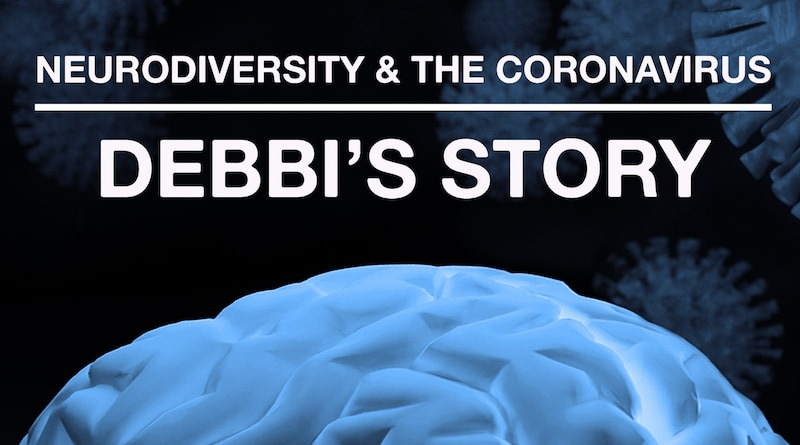 Featured Brain Image For Debbi's Story.
